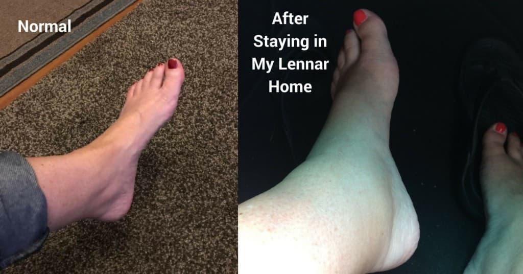 lennar home health hazard mold exposure construction issues 4
